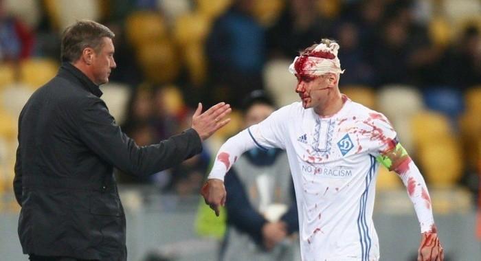 Хацкевич против Шахтера уверен в выходе Хачериди, но не Виды